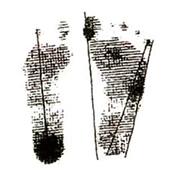 土踏まずの形成だけではなく浮き指の防止、外反・内反母趾にも最適!